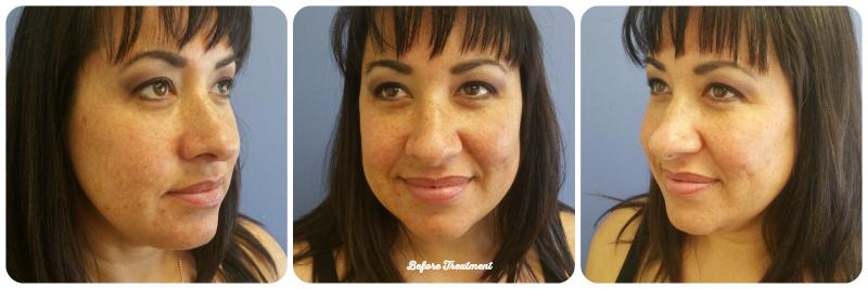 Before Treatment CosmetiCareMoms CosmetiCare