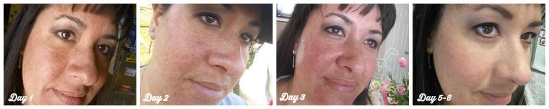 CosmetiCare Results for Rejuvenize Peel CosmetiCareMoms