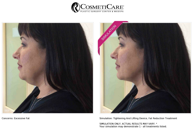 Cosmeticare New Look Now Simulation Results