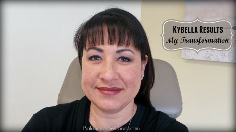 Cosmeticare Kybella Results My Transformation