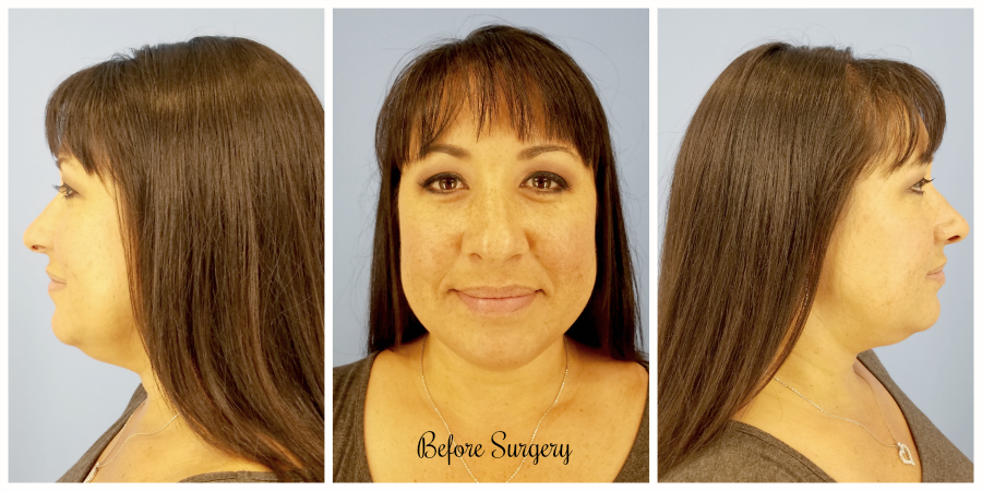 CosmetiCare Before Rhinoplasty Surgery