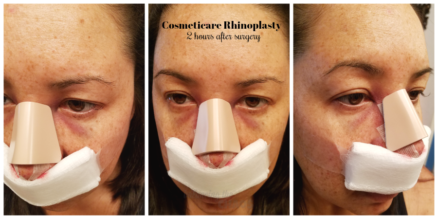 CosmetiCare Rhinoplasty 2 hours after surgery