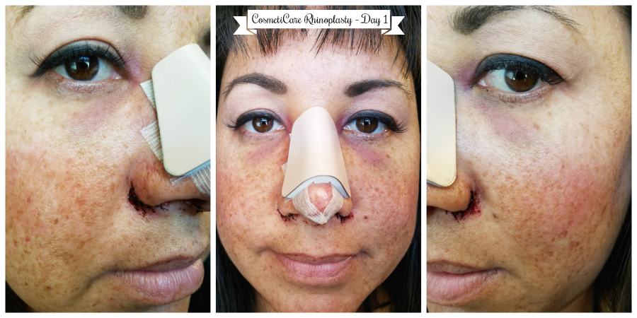 CosmetiCare Rhinoplasty Day 1