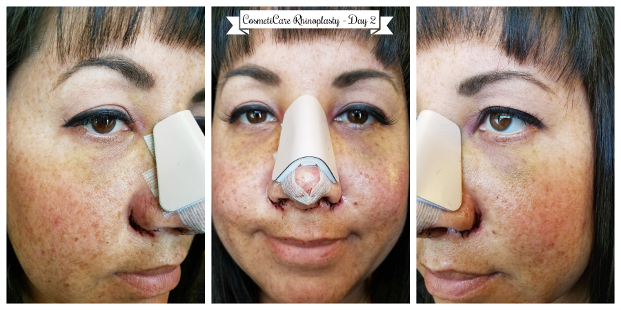 CosmetiCare Rhinoplasty Day 2