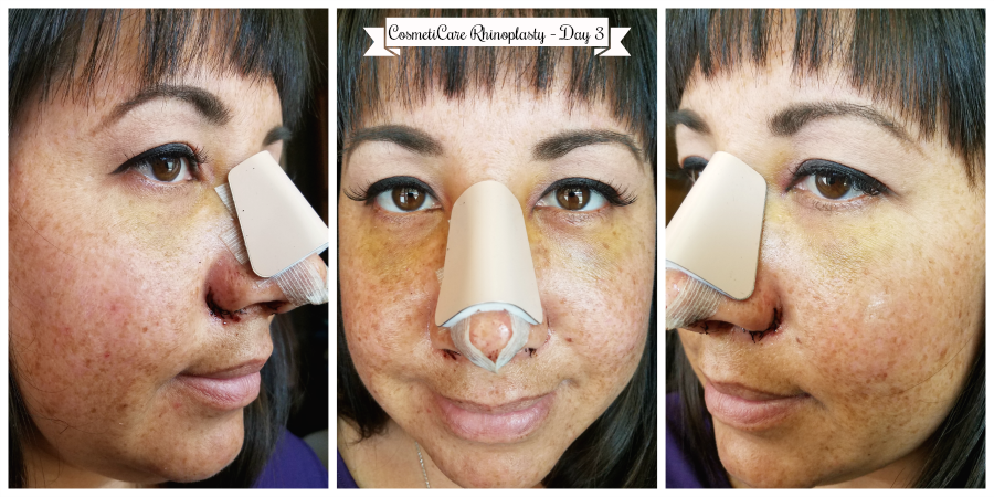 CosmetiCare Rhinoplasty Day 3