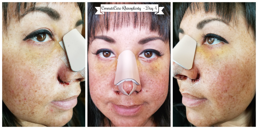 CosmetiCare Rhinoplasty Day 4
