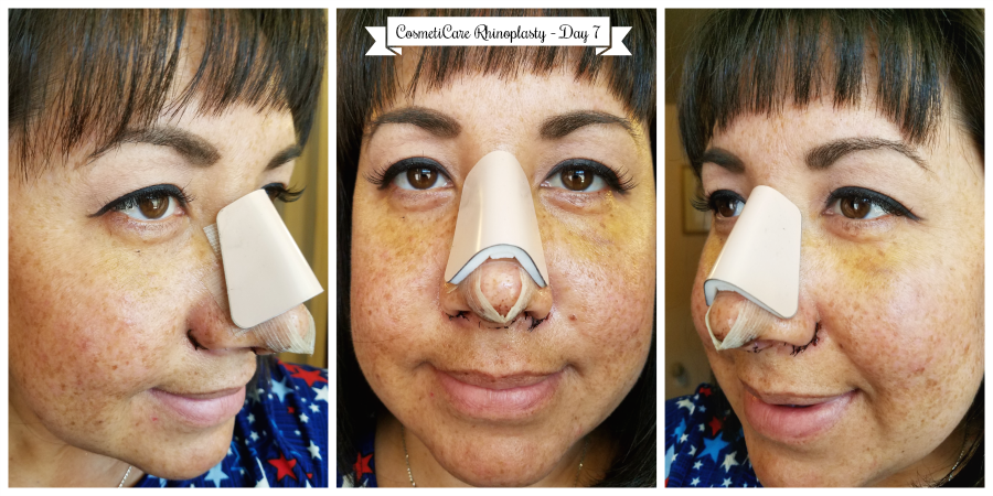 CosmetiCare Rhinoplasty Day 7
