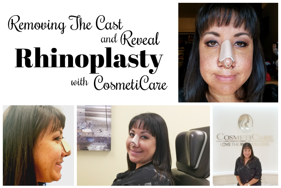Removing The Cast Rhinoplasty