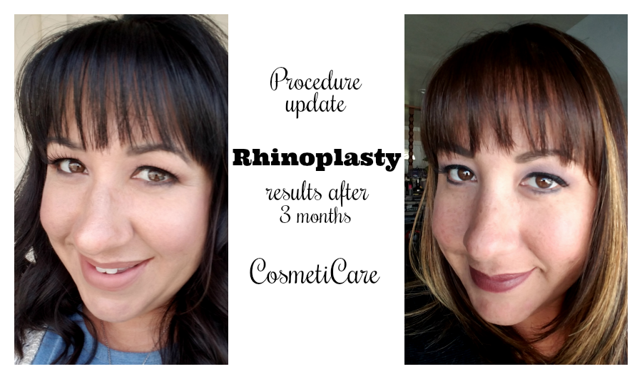 Rhinoplasty Results 3 Months After Surgery Cosmeticare Cosmeticareambassador Ad Balancing The Chaos