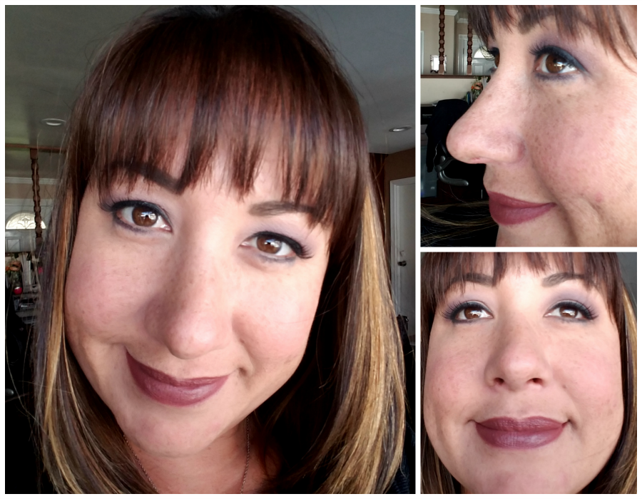 Rhinoplasty Results: 3 Months After Surgery | @CosmetiCare