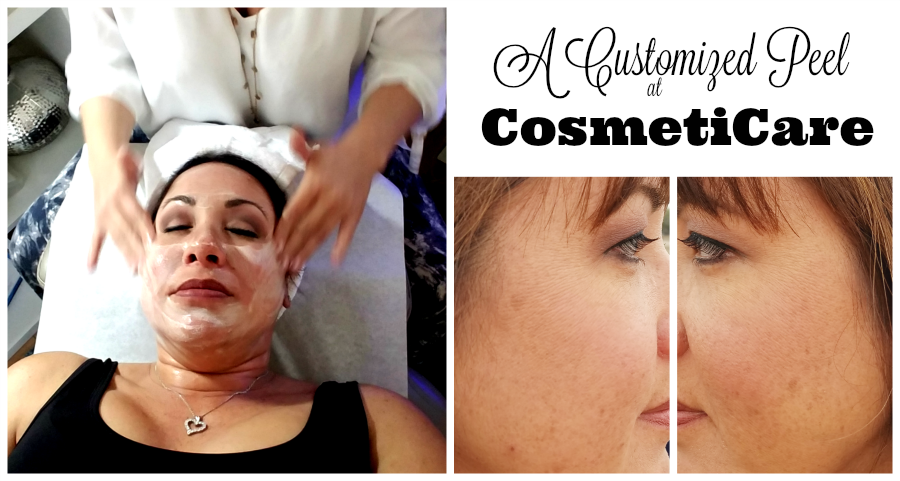 A Customized Peel at CosmetiCare