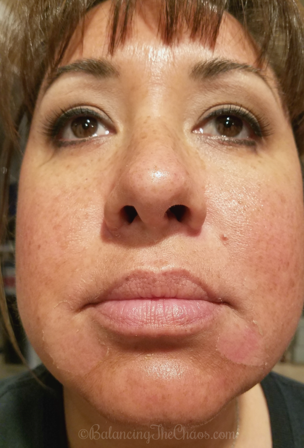 BalancingTheChaos Customized Vitality Peel with CosmetiCare