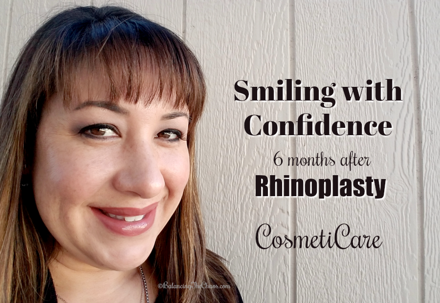 Smiling with Confidence 6 Months After My Rhinoplasty with
