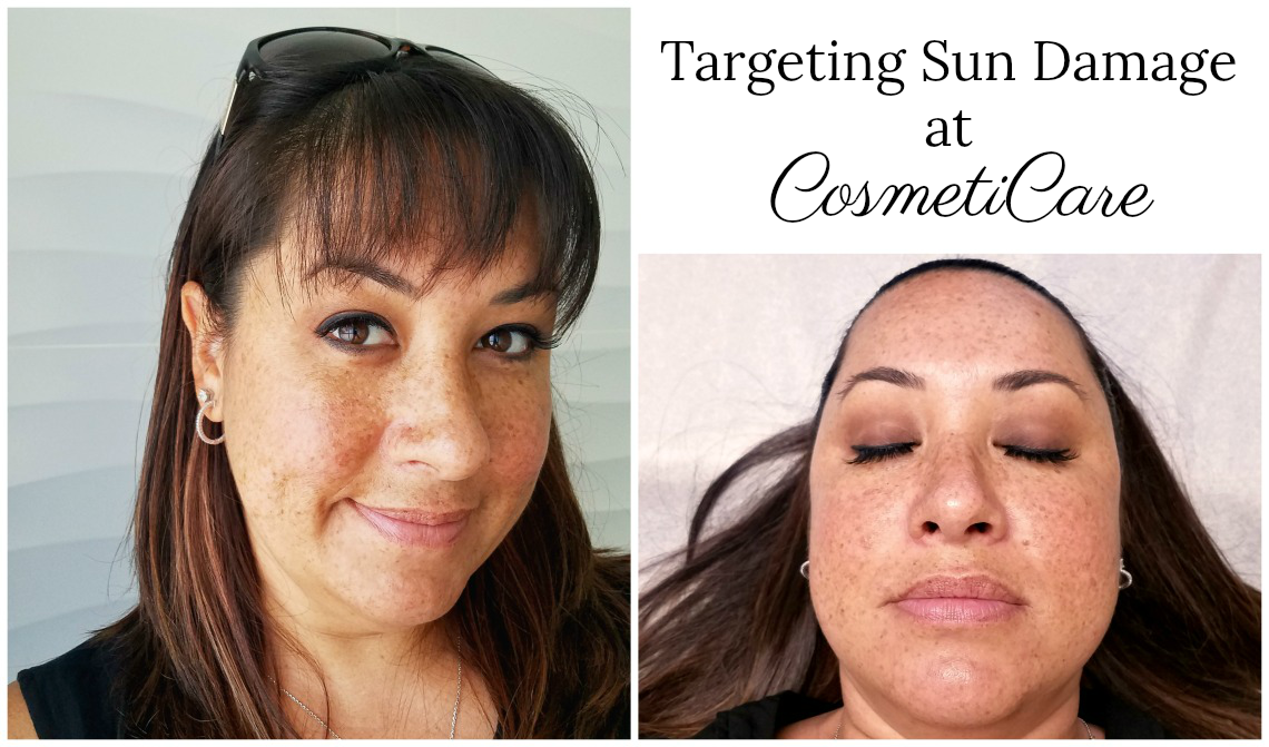 Targeting Sun Damange at CosmetiCare