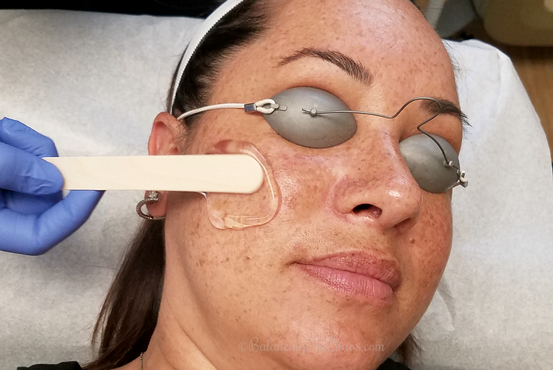 IPL Treatment with CosmetiCare