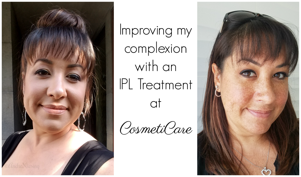Improving my complexion with IPL