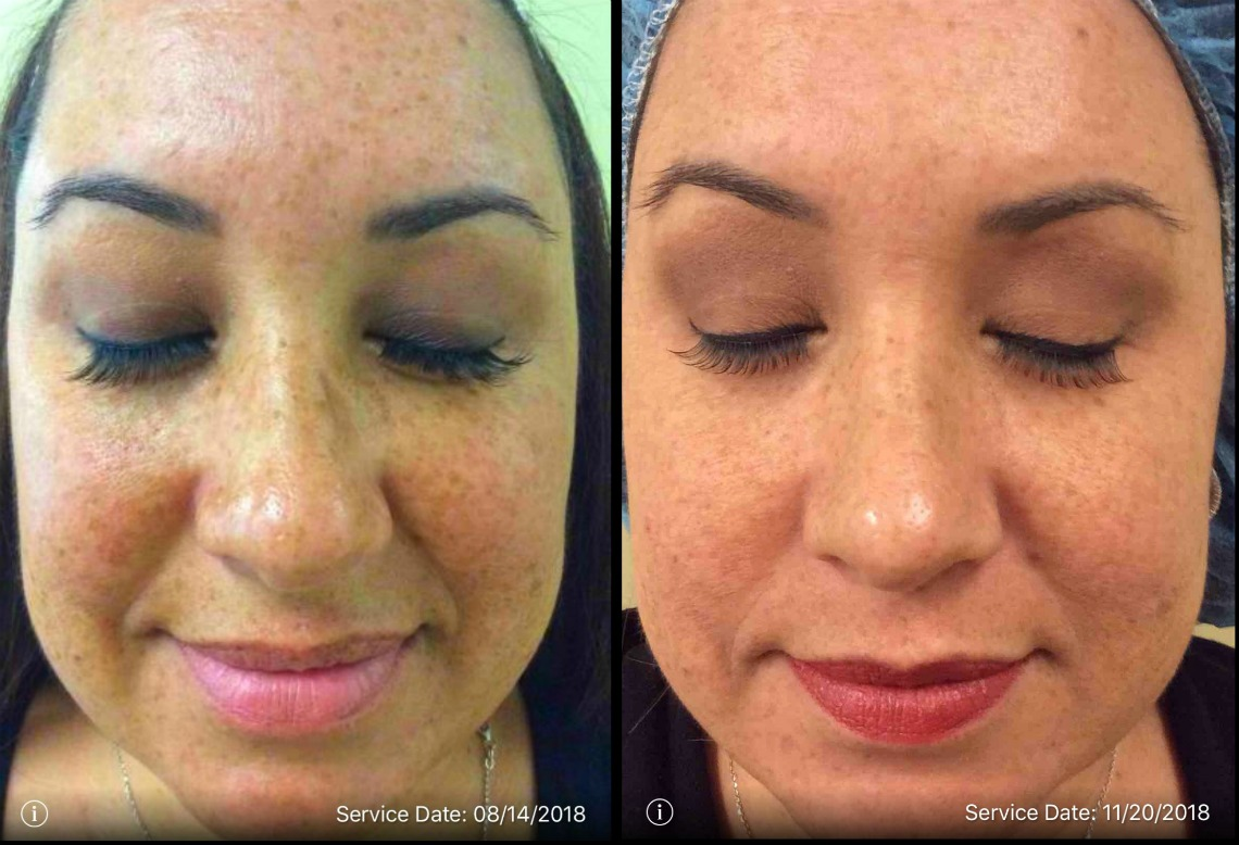 MedSpa IPL treatment results