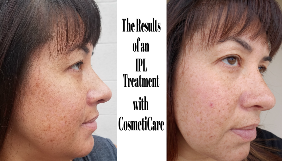 Results of IPL Treatment with CosmetiCare